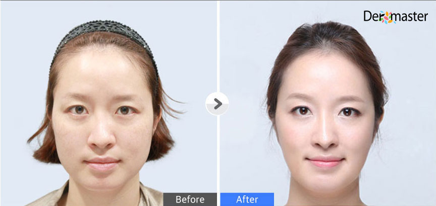 TuneFace_before-and-after-