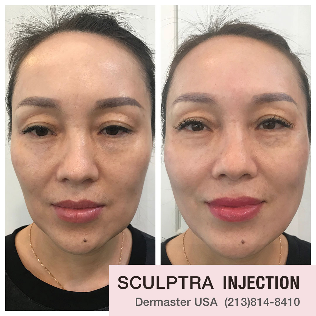sculptra-injection-dermaster-usa